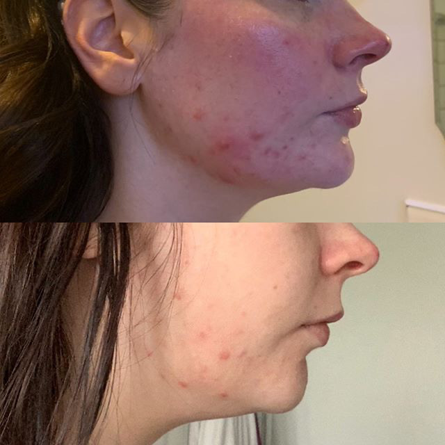 Before and after skinthings